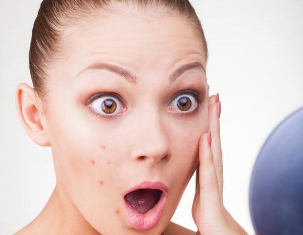 Cura del viso: come combattere i brufoli