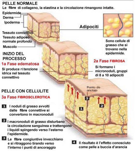Gli stadi della cellulite