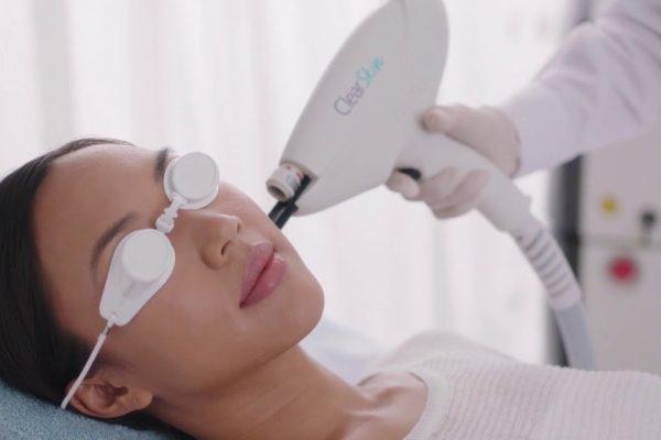 Clear Skin Laser la soluzione all'acne di Avenir1