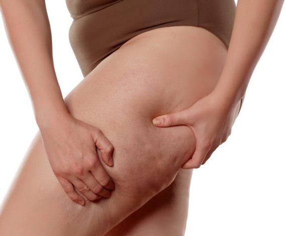 La mesoterapia per combattere la cellulite