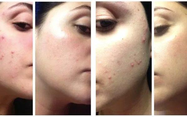 Acne e imperfezioni della pelle la soluzione Reacnel