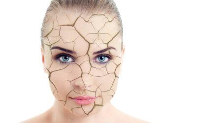 Pelle disidratata: i consigli per evitarla