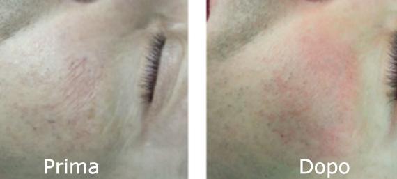 Capillari dilatati: risultati duraturi con il laser