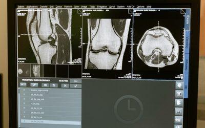 Gonartrosi: con l'embolizzazione si guarisce senza bisturi